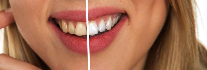 スターホワイトニングに行っても歯が白くならない理由